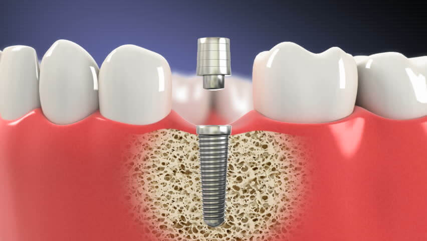 Dental Implants Brunswick