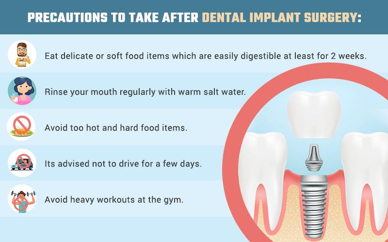 Non Metal Dental Implants