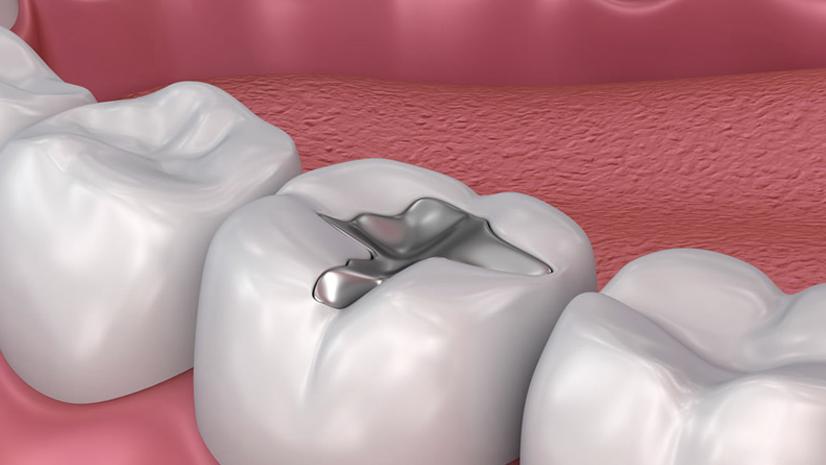 Amalgam Removal Dentist