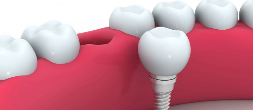 dental-implants-melbourne