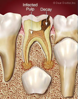 infected tooth pulp