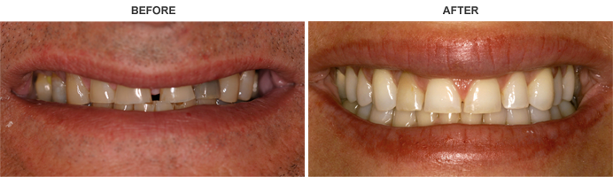 Teeth Grinding Before and After