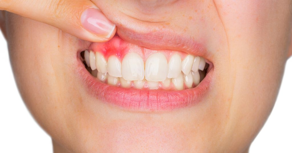 bleeding gums treatment Melbourne