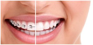Orthodontic braces treatment Brunswick