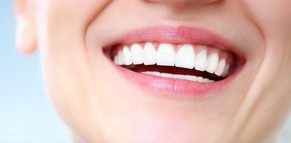 Composite Veneers vs Porcelain Veneers