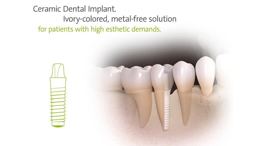 Zirconia Dental Implants Brunswick